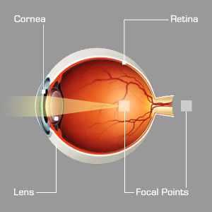 myopia solarization